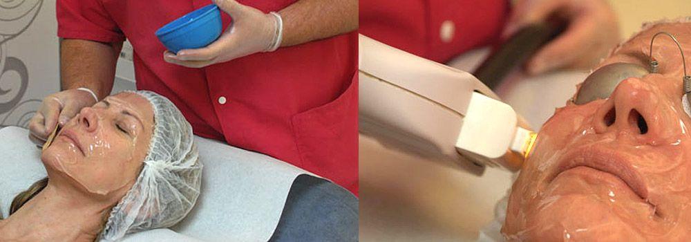 Lumière intense pulsée, traitement des taches brunes, rougeurs et couperose