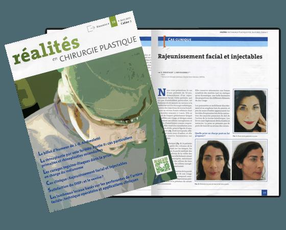Article dans la revue Réalités en Chirurgie Plastique